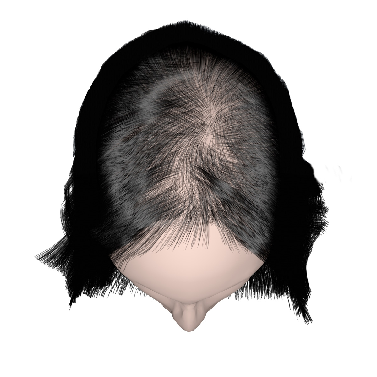 Beginning Stage of Hairloss